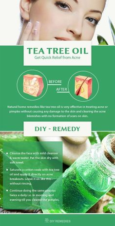 Natural home remedies like tea tree oil is very effective in treating acne or pimples without causing any damage to the skin and clearing the acne blemishes with no formation of scars on skin. #naturalskincare #skincareproducts #Australianskincare #AqiskinCare #australianmade
