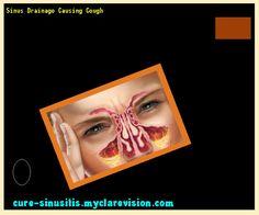 Sinus Drainage Causing Cough 104525 - Cure Sinusitis