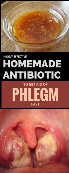 Highly Effective Homemade Antibiotic to Get Rid of Phlegm Fast | Worthy Tips and Tricks