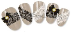 Black & White Lace Bands