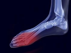 Tactics for coping while non-weight-bearing after foot surgery - Foot & Ankle Problems Message Board - HealthBoards Bunion Surgery, Ankle Surgery, Oral Surgery, After Surgery, Non Weight Bearing Exercises, Broken Ankle Recovery, Lisfranc Injury, Broken Foot, Surgery Recovery