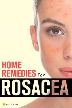 Rosacea is a chronic skin condition characterized by acne facial outbreaks. Read to know the best 10 home remedies for rosacea that are very effective.