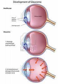 Oogaandoening glaucoom die men ook wel groene staar noemt is een ernstige aandoening van de ogen die volledige blindheid tot gevolg kan hebben. Vrouwen hebben iets meer kans dan mannen op deze oogaandoening. De Oogaandoening glaucoom ontwikkelt zich voornamelijk vanaf het veertigste levensjaar.