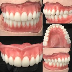 F/F shipping out today! Have a great weekend everyone! – Top Of The World Home Remedies For Cavities, Dental Lab Technician, Dental Images, Best Human Hair Wigs, Veneers Teeth, Dental Anatomy, Perfect Teeth, Dental Logo, Dental Laboratory