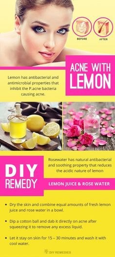 Lemon has antibacterial and antimicrobial properties that inhibit the P.acne bacteria causing acne. It has citric acid that acts as natural exfoliant which helps the skin to get rid of dead skin cells to make it softer and acne scar free. *** Click image to review more details.