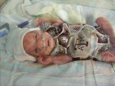 tiny babies born 24 weeks premature - premature babies 22 - 24 ...
