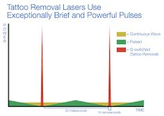 Image result for laser tattoo removal