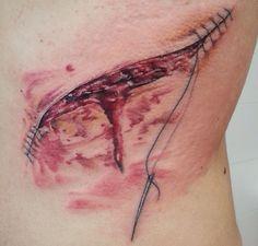 Open wound scar suture sew tattoo needle thread