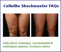 Cellulite causes the skin of the lower body to sag, treat it with Shockmaster a revolutionary new technology to cure cellulite. Shockmaster cellulite treatment is a combination therapy, beginning with Acoustic wave therapy (AWT), followed immediately afterwards by lipomassage with Endermologie, to enhance lymphatic drainage. Read out FAQs about the treatment and solve all your pre-treatment queries.