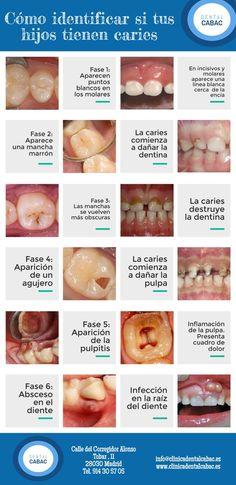 A través de estas imágenes podrás ver las fases de la caries en los dientes de tus hijos