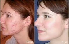 Acne treatment is possible by applying Tretinoin cream and the advantage of this cream is that it is also an anti-aging agent.