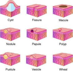 SKIN LESION: Cyst, Fissure, Macule, Nodule, Papule, Polyp, Pustule, Vesicle, Wheal ◬