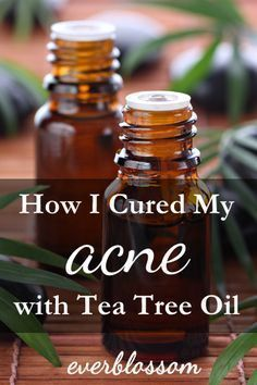 I used tea tree oil for acne and never looked back! So effective!