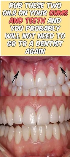 Rub these two oils on your gums and teeth and you probably will not need to go to dentist again!