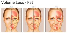 Calgary Botox, Juvederm, CoolSculpting, Ultherapy and much more! Anatomy Face, Facial Anatomy, Facial Fillers, Dermal Fillers, Cheek Fillers, Facial Fat Loss, Relleno Facial, Reduce Face Fat, Face Age