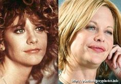 Meg Ryan was characterized in the 80 and 90 to be a classic American beauty, with eyes and light hair and delicate features, but since her birthday the actress began to modify some of these features with plastic surgery. Celebrities Before And After, Celebrities Then And Now, Plastic Surgery Gone Wrong, Facial Fillers, Celebrity Plastic Surgery, Under The Knife, Meg Ryan, Celebrity Stars, Stars Then And Now