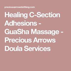 Healing C-Section Adhesions - GuaSha Massage - Precious Arrows Doula Services
