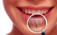 Are you searching for information about dental Implant surgery and costs in Mohali? Dentia provides dental implant surgery at an affordable rate. Get details about Dental implants clinic in Mohali Dental Implant Procedure, Best Dental Implants, Implant Dentist, Dental Surgery, Dental Procedures, Protésico Dental, Dental Care, Smile Dental, Dental Hygienist