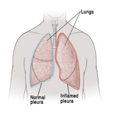 Natural Cure For Fluid In The Lungs