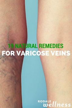 Soothe away varicose veins with these natural remedies.   Rodale Wellness