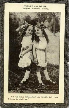 Violet and Daisy Hilton, arguably the most famous conjoined twins seen here in a promotional pitchcard from 1914.