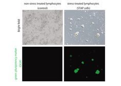 Researchers create 'programmable' stem cells through stress