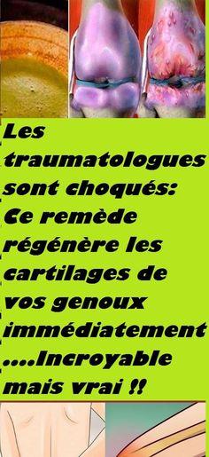 Les traumatologues sont choqués: Ce remède régénère les cartilages de vos genoux immédiatement....Incroyable mais vrai !!