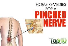 Home Remedies for a Pinched Nerve