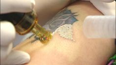 The Importance of Technology in Tattoo Removal - Importance of Technology