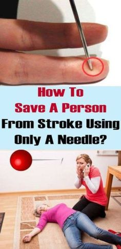 Secret Health Remedies How To Save A Person From Stroke Using Only A Needle? Health And Beauty, Health And Wellness, Health Fitness, Fitness Foods, Health Care, Health Foods, Health Diet, Healthy Lifestyle Tips, Healthy Tips