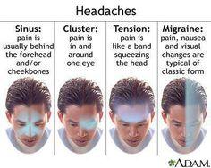 Headaches.