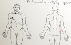 Michael Brown death - drawings from the Baden autopsy report (via BBC)