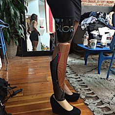 3D Printed prosthetic limbs
