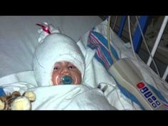 Craniosynostosis.....  a condition in which one or more of the sutures in an infants skull prematurely fuses together. When our son was diagnosed  we were informed that he would have to undergo major surgery in order to correct the abnormal shape of his head and to allow his brain to grow normally.  This is a video of his journey.