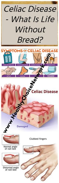 Celiac disease is a concomitant complication of the ban on eating plain bread and all products containing classical flour. How to live with this disease and the resulting limitations? What is Celiac. Natural Health Tips, Natural Detox, Natural Health Remedies, Natural Cures, Healthy Tips, Healthy Choices, Health Advice, Health And Wellness, What Is Celiac