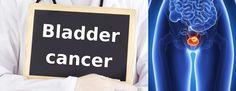 Prognosis Of Bladder Cancer