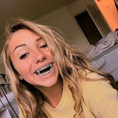 Cute Braces Colors, Cute Girls With Braces, Dental Braces, Teeth Braces, Light Blue Braces, Blonde Girl Selfie, Braces Tips, Girl Tongue, Beauty