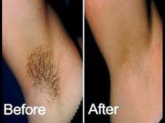 Get extra weight quickly and safely. The best remedy, approved by doctors! Try it for free! Remove Arm Hair, Double Menton, Beautiful Figure, Fast Weight Loss, Body Care, Shaving, Beauty Hacks, How To Remove, Hair Beauty