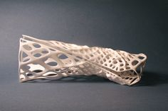 3-D Printed Arm Cast of the Future