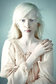 Beautiful Albinism. How can one look so flawless? It's like looking at a porcelain doll.