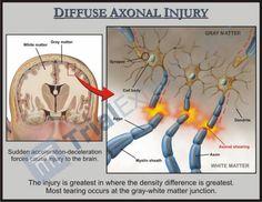 The Latest Research on Traumatic Brain Injury (#TBI): Causes, Diagnostics, Treatments  http://www.sallyember.com/blog