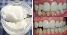 Halitosis (bad breath) can be solved with good oral hygiene Coconut Oil For Teeth, Coconut Oil Pulling, Dental Health, Dental Care, Oral Health, Teeth Health, Health Care, Gum Health, Homemade Colon Cleanse