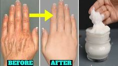 Baby Hands, Soft Hands, Dry Hands Remedy, Anti Aging Mask, Les Rides, Wrinkle Remover, Youtube, Herbal Medicine, Face And Body