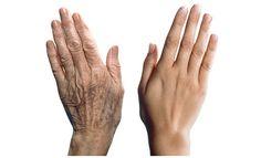 Sante & sciences : Comment ralentir le vieillissement de la peau grâce à la nature :