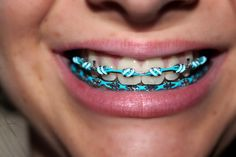 Cool braces Philbin & Reinheimer Orthodontics in Annapolis, Maryland and Stevensville, MD. Braces Rubber Bands, Braces Bands, Braces Tips, Dental Braces, Teeth Braces, Braces Humor, Dental Care, Cute Braces Colors, Cute Girls With Braces