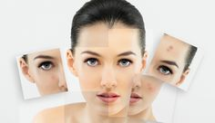 How you can prevent acne reinfection - http://heeyfashion.com/2015/08/how-you-can-prevent-acne-reinfection/