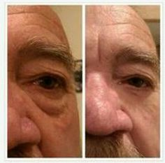 Where Can I Buy Jeunesse Instantly Ageless Eye Cream ? Come to Our Official Website and You Could Buy Best Jeunesse Instantly Ageless Anti Aging Eye Cream, Latina, Botox Alternative, Under Eye Bags, How To Line Lips, Tired Eyes, How To Look Handsome, Puffy Eyes, Stretch Marks, Just Amazing