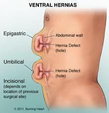 ¿Qué es una hernia? ¿Por qué hay que operar una hernia? ¿Cómo se opera una hernia? ¿Cuánto dura la intervención?