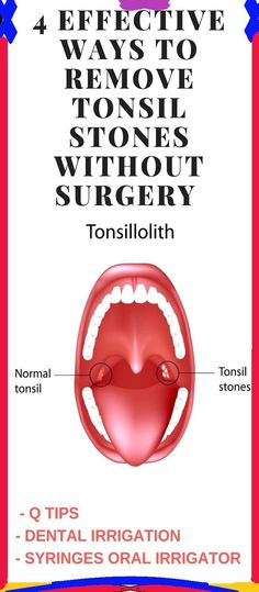 Tips On Removing Tonsil Stones With Relief !