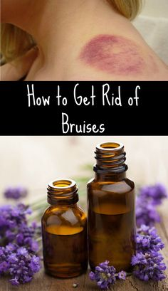 Allergy Remedies 17 Home Remedies for How to Get Rid of Bruises Natural Health Remedies, Natural Cures, Holistic Remedies, Holistic Healing, Heal Bruises, Eating Pineapple, Health And Wellness, Health And Beauty, Health Yoga